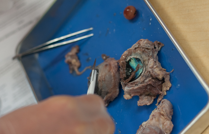 A successful dissection of an eye, with the lens removed.